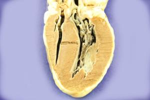 Pre-sliced pure heart