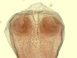 Tapeworm, Comparative Scolices Slide