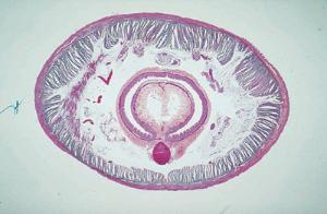 Earthworm, Posterior Slide