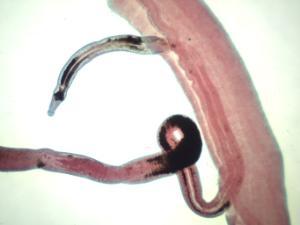<i>Schistosoma japonicum</i>, Male/Female Slide