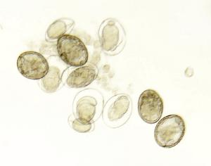 Schistosoma japonicum, Eggs Slide