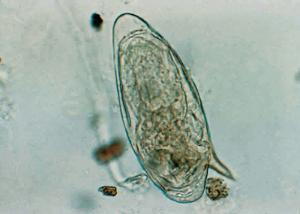 <i>Schistosoma mansoni</i>, Eggs Slide