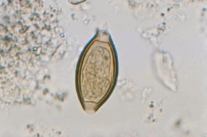 Trichuris trichiura, Eggs Slide
