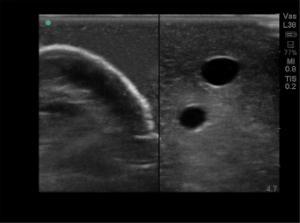 Gen II - hand pump ultrasound central line training model