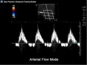 Peripheral doppler ultrasound training model