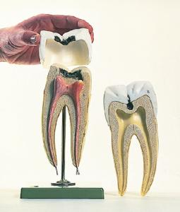 Somso® Molar With Cavities Model
