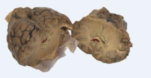 Sheep Brain Stroke Set