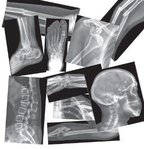 Bones X-Rays