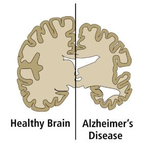 Alzheimer's disease vs healthy brain