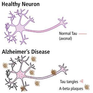 Neuron comparison
