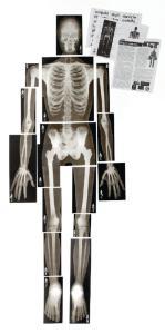 Full Scale Human X-Rays