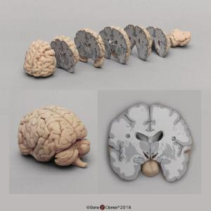 Advanced brain bundle