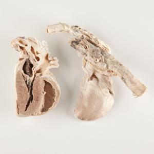 Plastinated Biological Specimens - Bisected Pig Heart