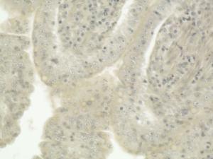 Toxoplasma gondii, Small Intestine Slide