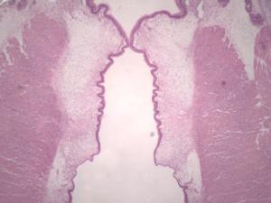 Larynx Slide