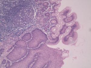 Esophagus-Stomach Junction, Primate Slide