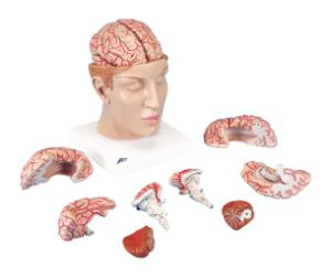 3B Scientific® Brain In Head