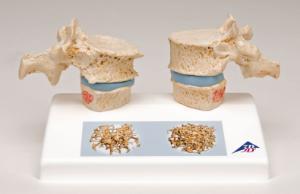 3B Scientific® Osteoporosis Model