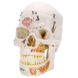 Deluxe Dental Demonstration Skull