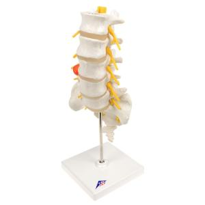 Lumbar Spinal Column