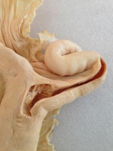 Plastinated Bovine Reproductive Tracts