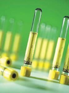 VACUETTE® Urine Tubes, Greiner Bio-One