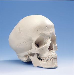 3B Scientific® Hydrocephalic Skull
