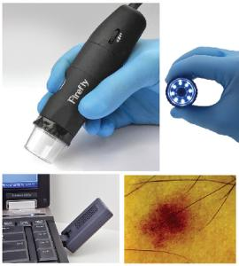 Firefly Digital Video Dermatoscope
