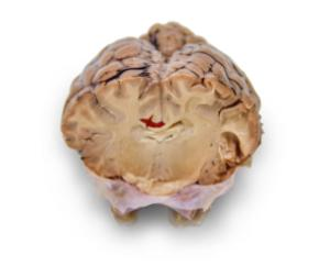 Preserved Sheep Brains with Simulated Tumors and Strokes