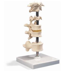 3B Scientific® 6 Vertebrae Set