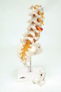 3B Scientific® Lumbar Spinal Column With Prolapsed Disc