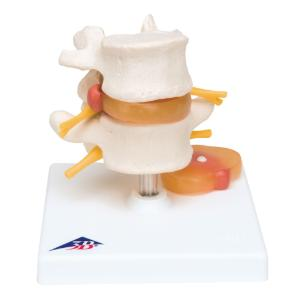 3B Scientific® Lumbar Spine With A Prolapsed Disc