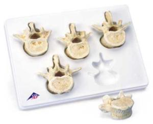 3B Scientific® BONElike™ Vertebrae Sets