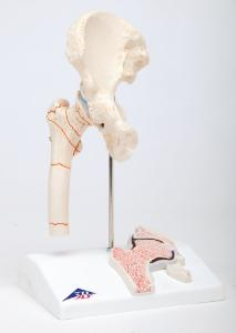 3B Scientific® Femoral Fracture And Hip Osteoarthritis