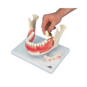 3B Scientific® Dental Diseases