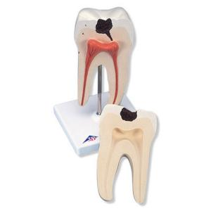 3B Scientific® Classic Tooth Models