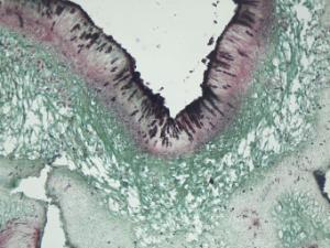 Lichen, Ascocarps Slide