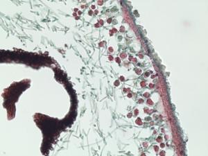 Lichen, Foliose Type Slide