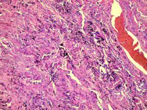 Lung, Tuberculosis (Human) Slide