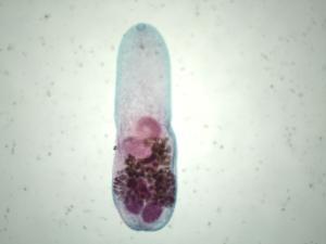 <i>Heterophyes heterophyes</i> Slide