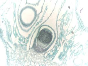 Marchantia, Young Sporophyte Slide