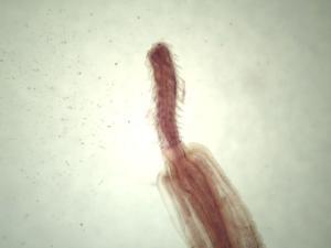 Acanthocephala, Adult Slide
