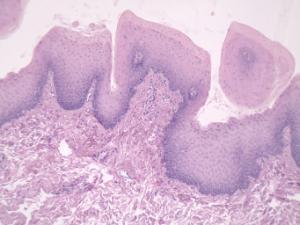 Tongue, Fungiform Papillae Slide