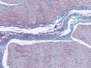 Nervous Tissue Slide