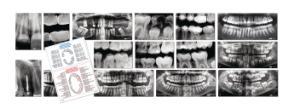 Roylco Dental X-Rays