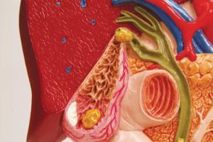 3B Scientific® Gallstones