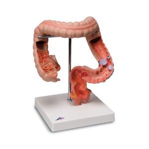 3B Scientific® Intestinal Diseases