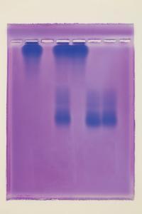 Ward's® Screening Hemoglobin for Sickle Cell Lab Activity