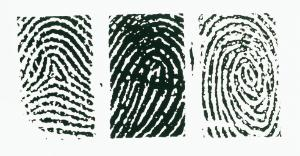 Ward's® Fingerprint Types Slide Set