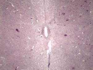 Spinal Cord with Ganglion Slide
